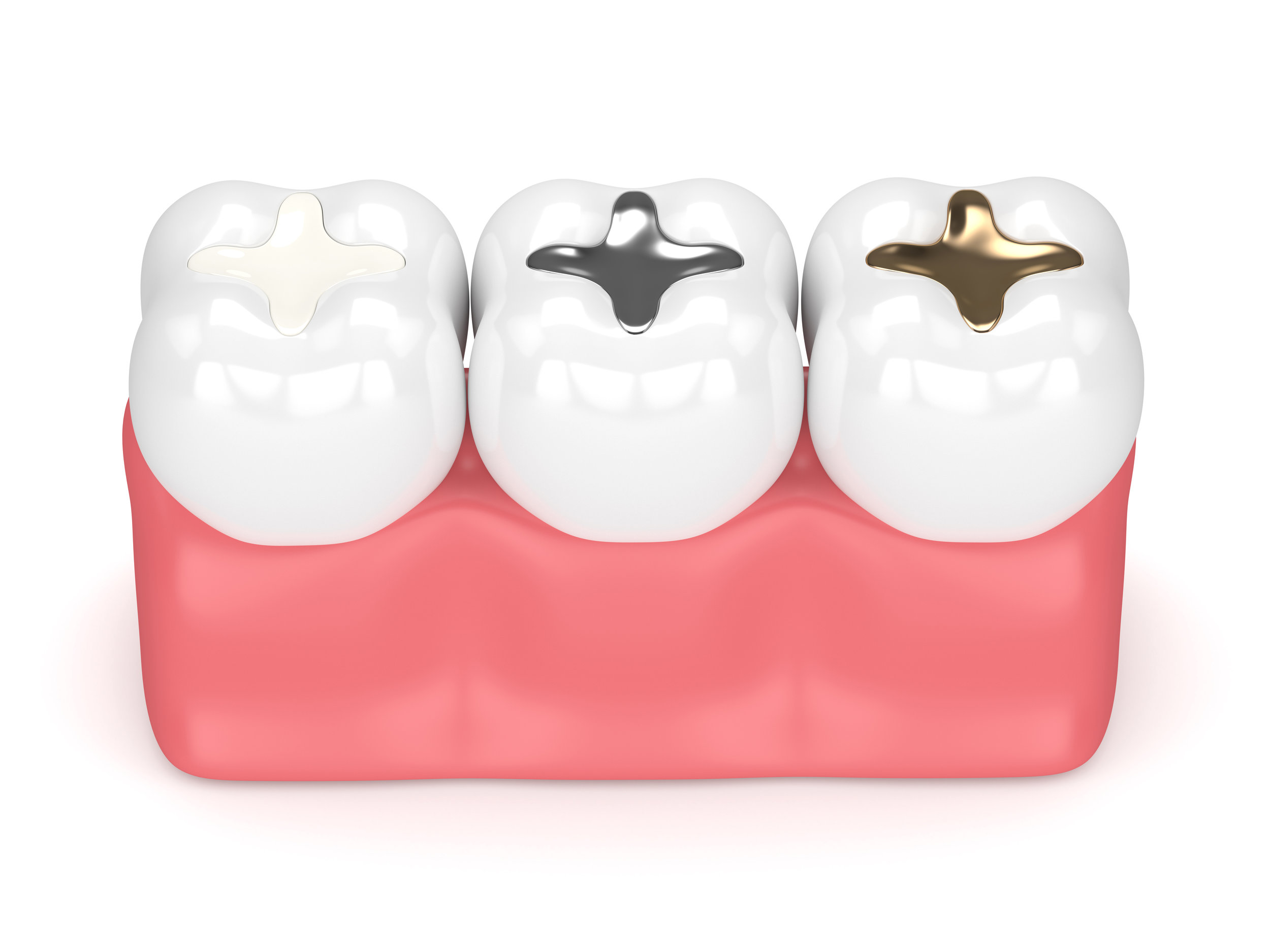 Fillings - Fillings, otherwise known as dental restorations, are used to prevent the spread of tooth decay or correct any cosmetic damage.Learn More