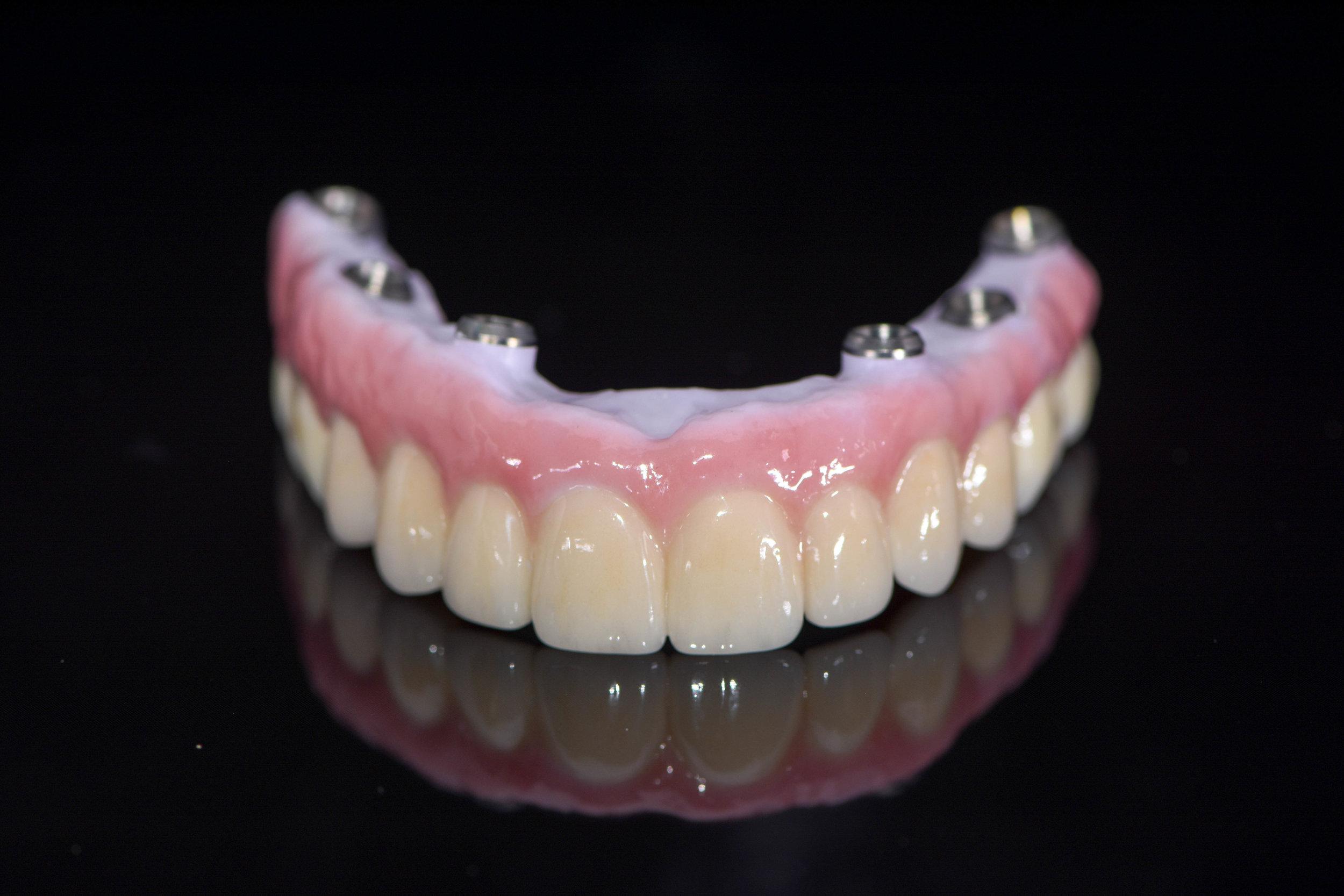 Implant Dentures -