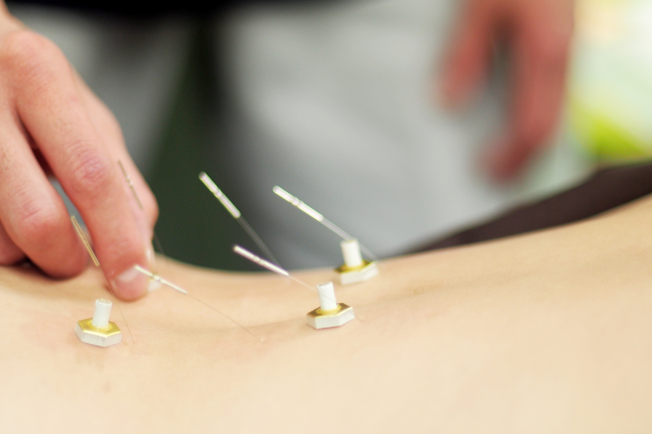Moxibustion takes different forms and may be employed with needles (acupuncture) in a combination therapy to warm the needle and stimulate the flow of energy in a needled-site.
