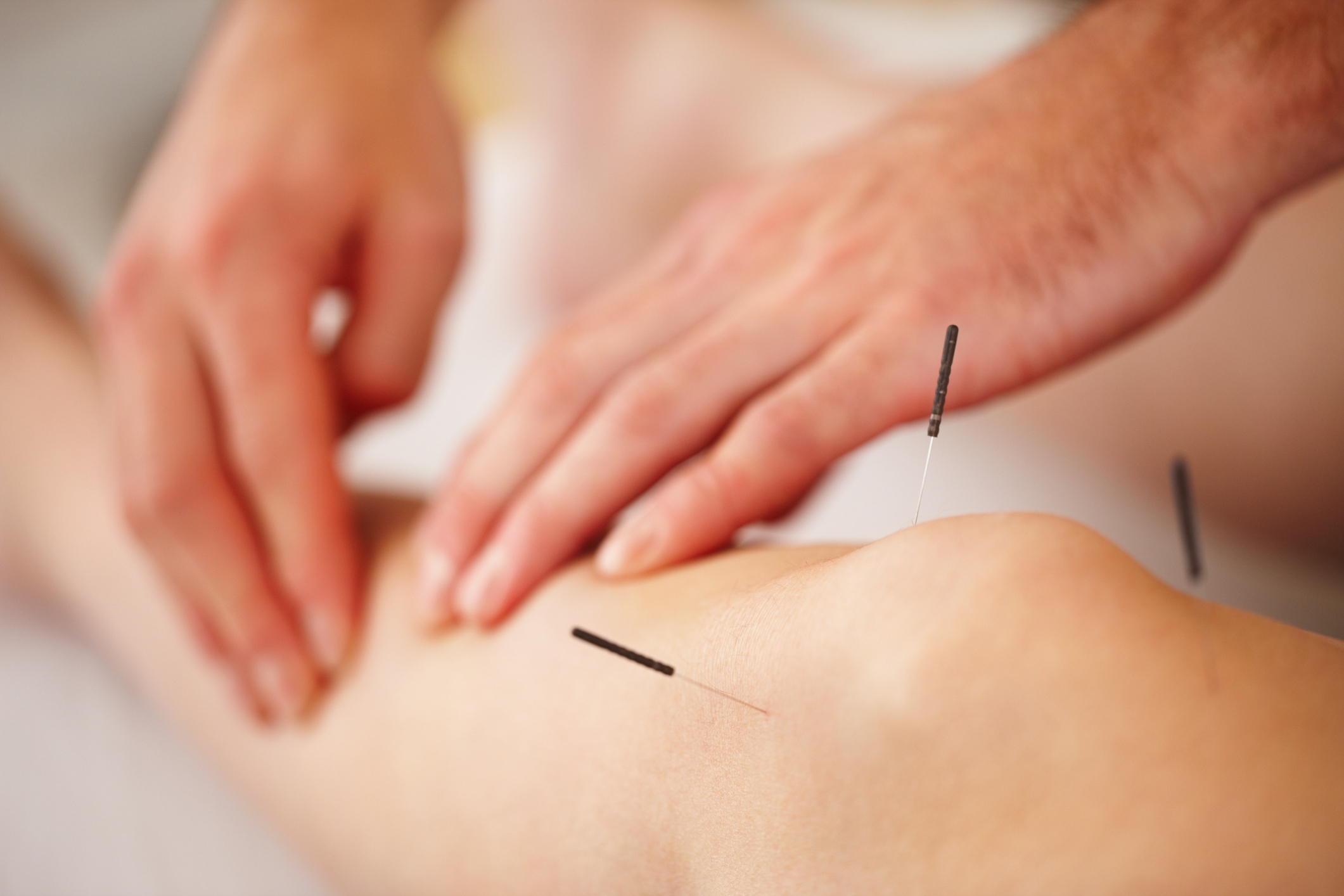 Acupuncture needles may be combined with acupressure work (tuina).