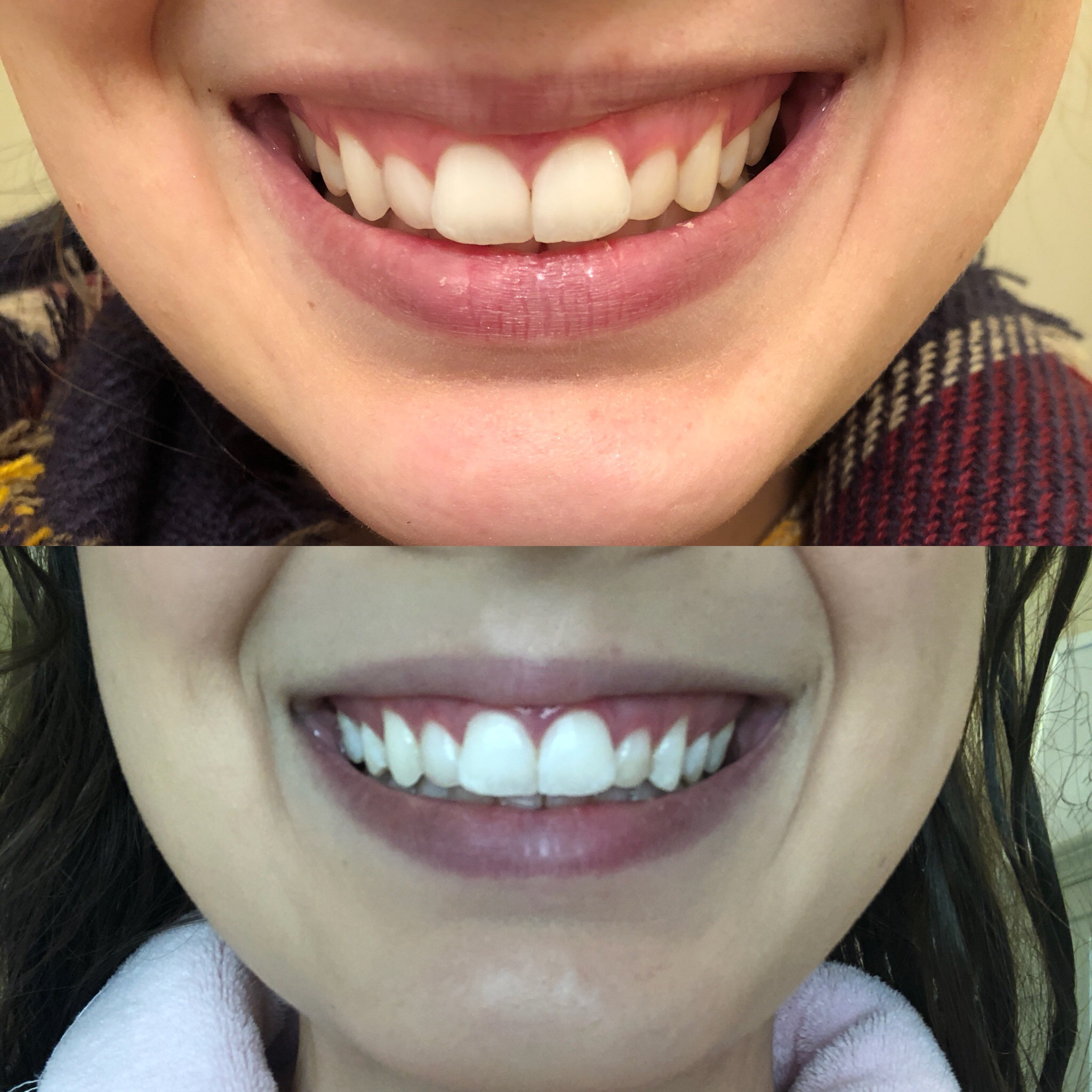 Results after just a few days of using the system