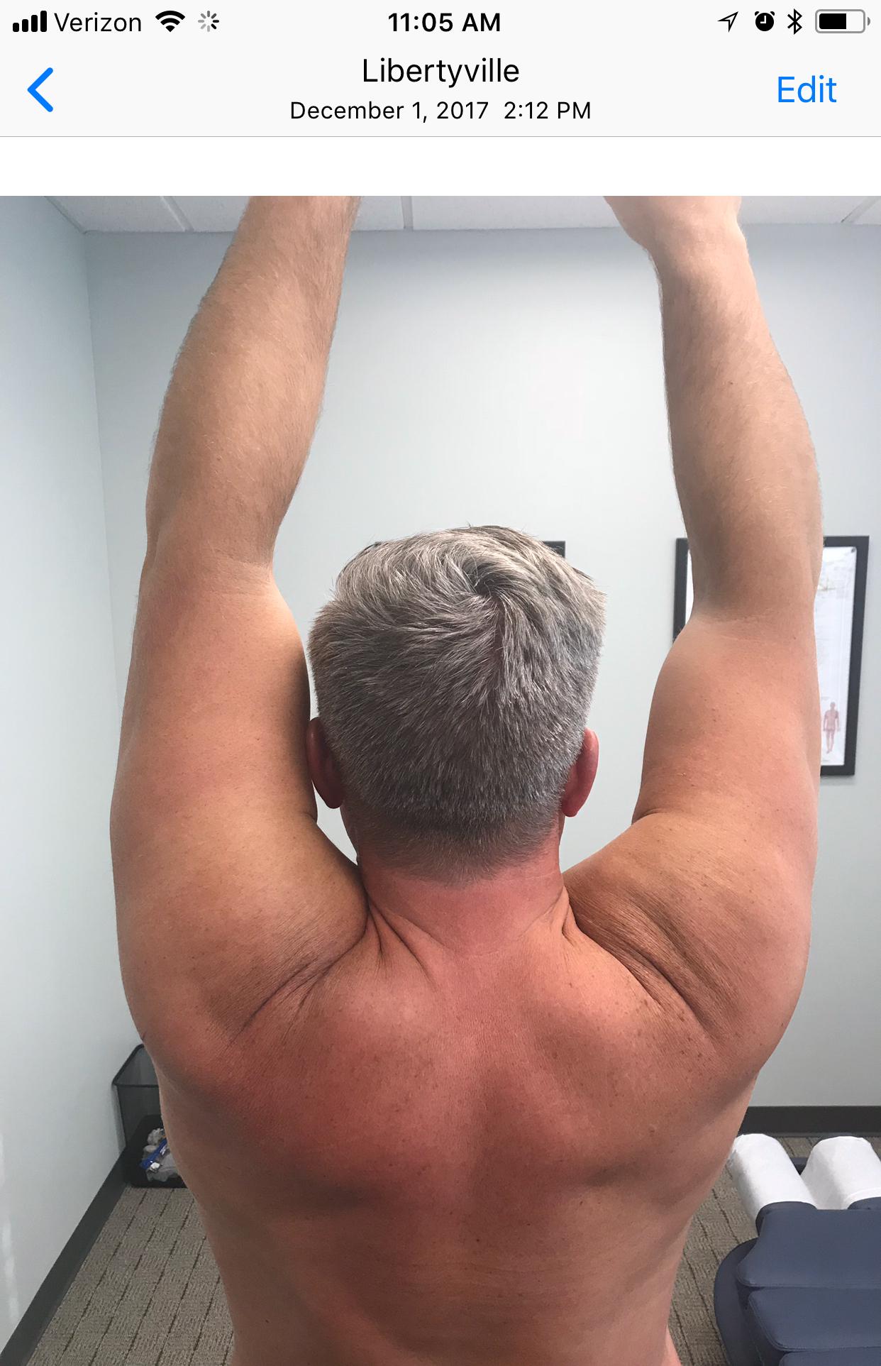 shoulder-image-2.jpg