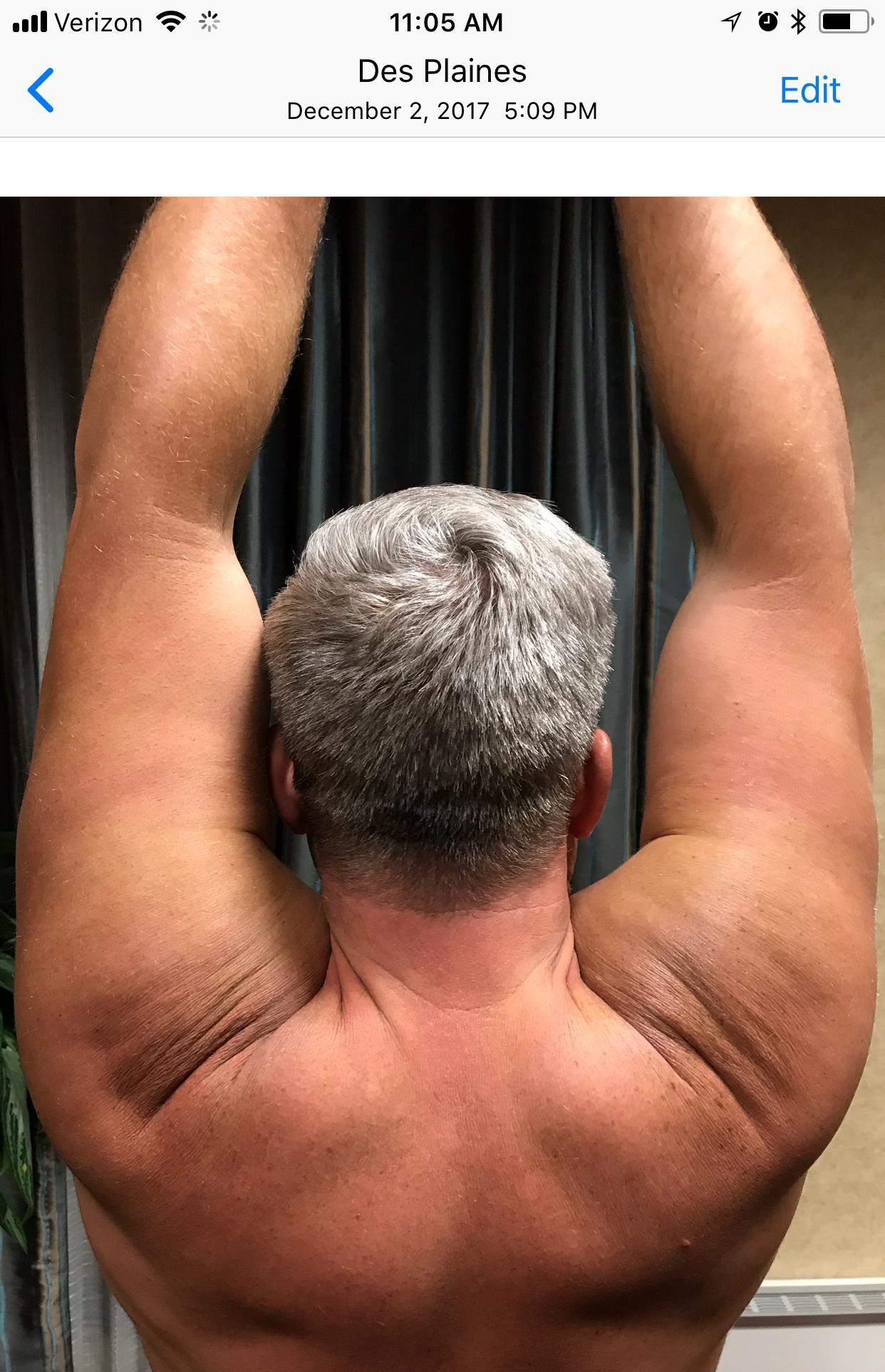 shoulder-image-3.jpg