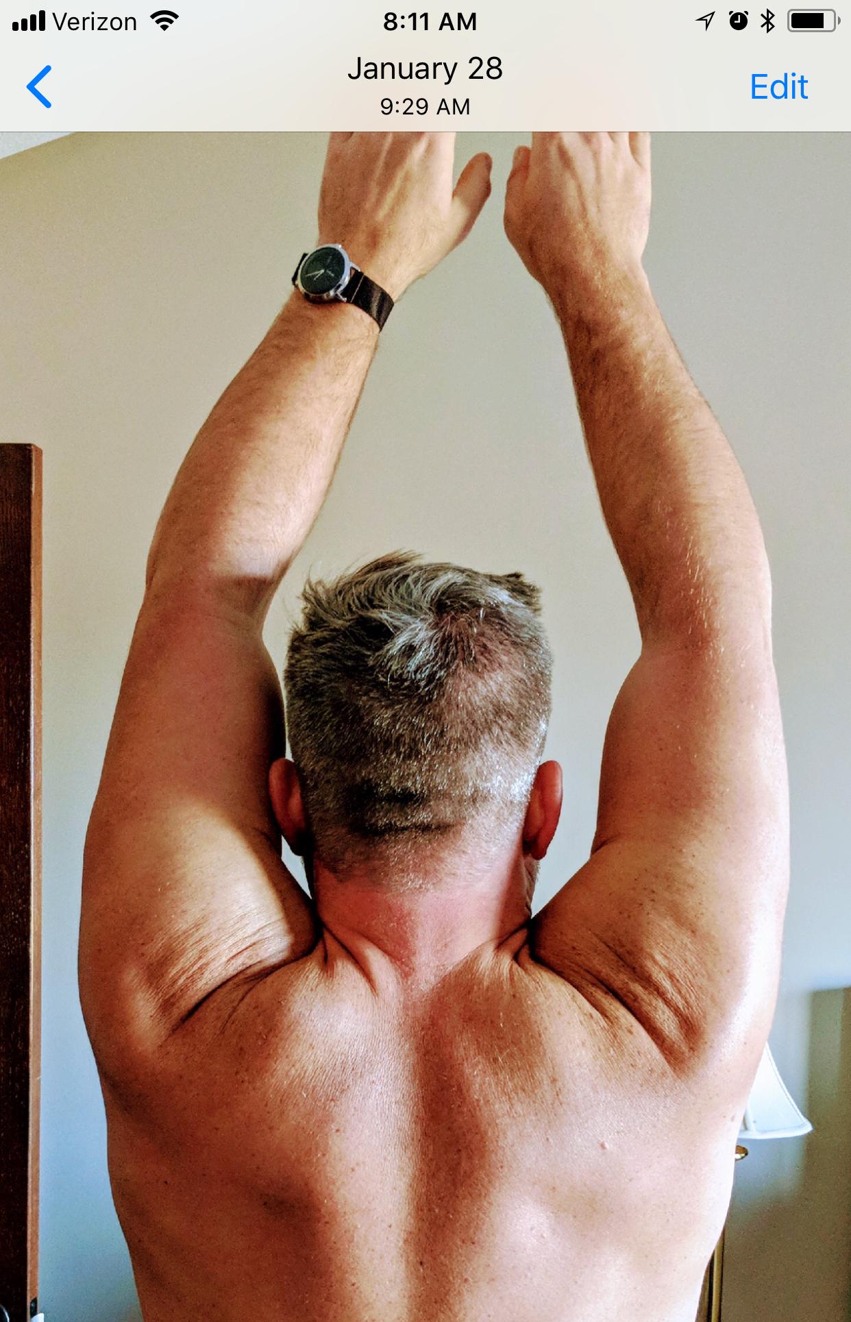 shoulder-image-4.jpeg