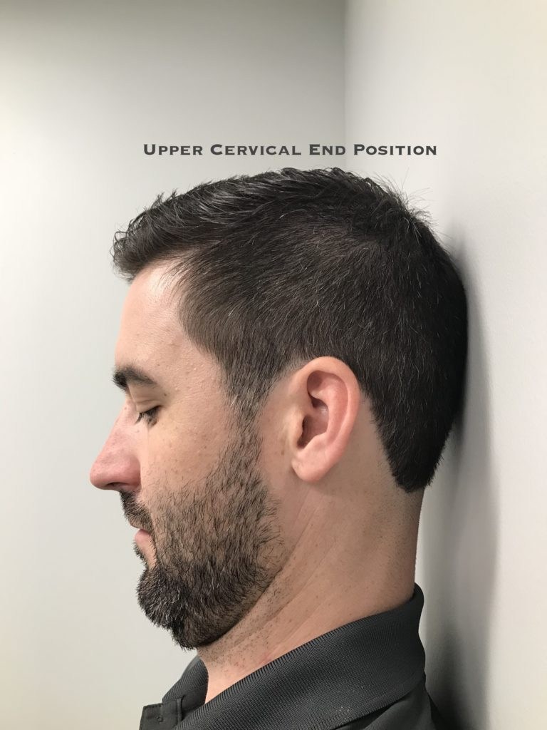 Upper neck test end position. Healthy motion is smooth, pain-free, and easy.
