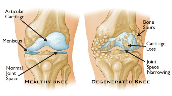FSS-Knee3.jpg