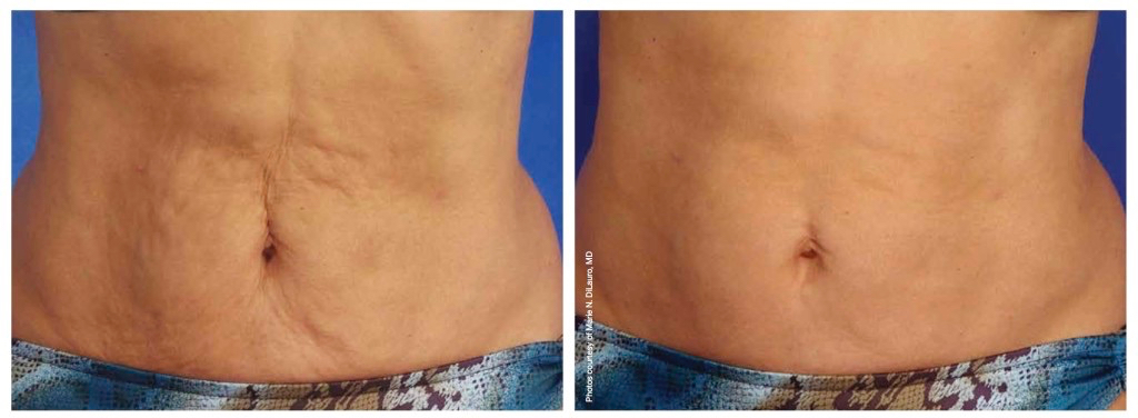 skintyte-Before-and-After-e1398379353398-1024x376.jpg