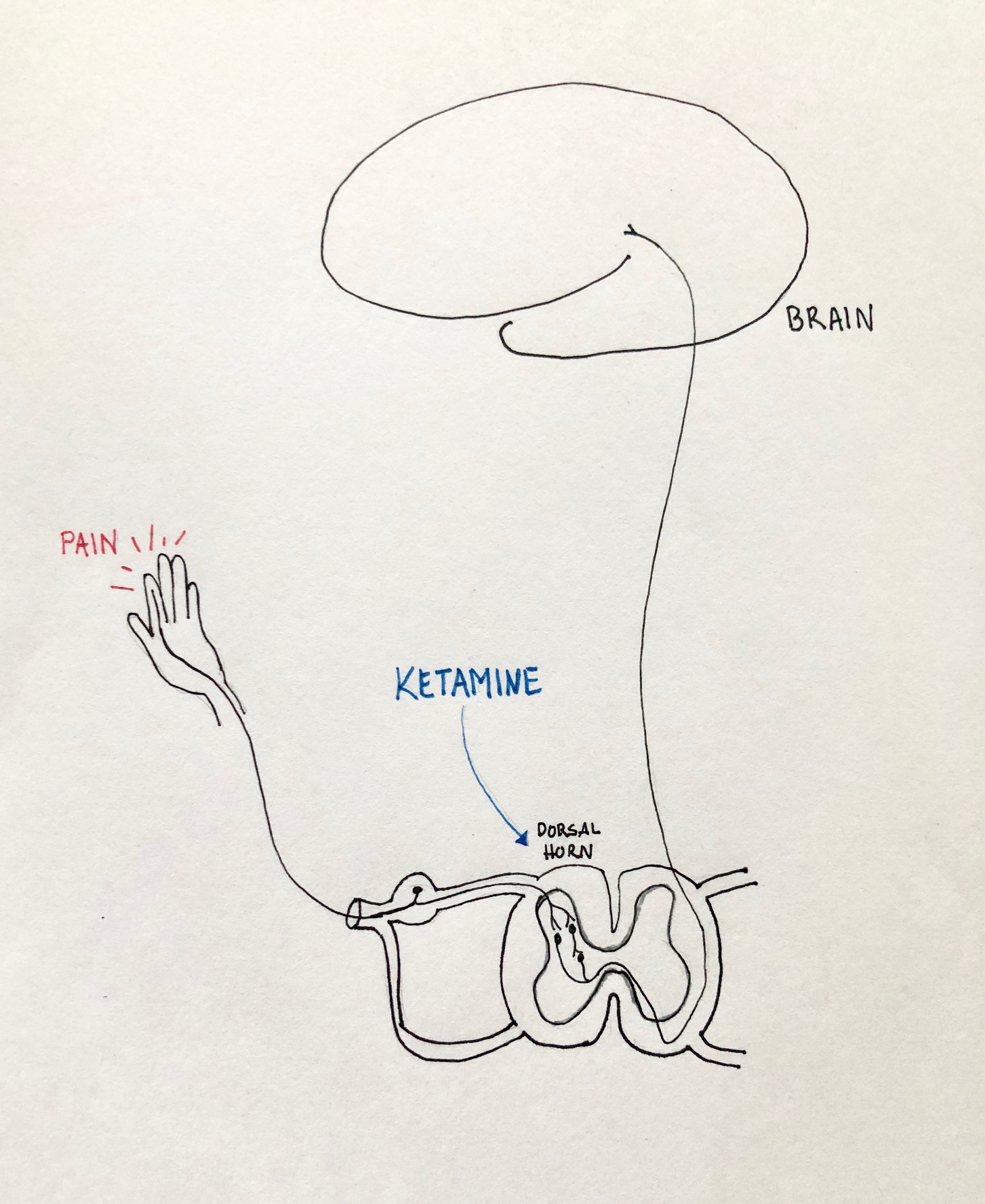"""Ketamine blocks the NMDA receptors found in the dorsal horn of the spinal cord, which seems to """"reset"""" the pain receptors.  Illustration by    Kimberly Ko, MD   . © 2019."""
