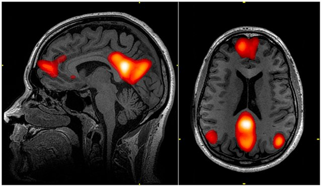 Magnetic resonance imaging of areas of the brain in the default mode network.   Public Domain from Wikipedia.