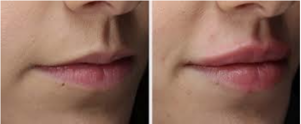 Before & After LipLase treatment.