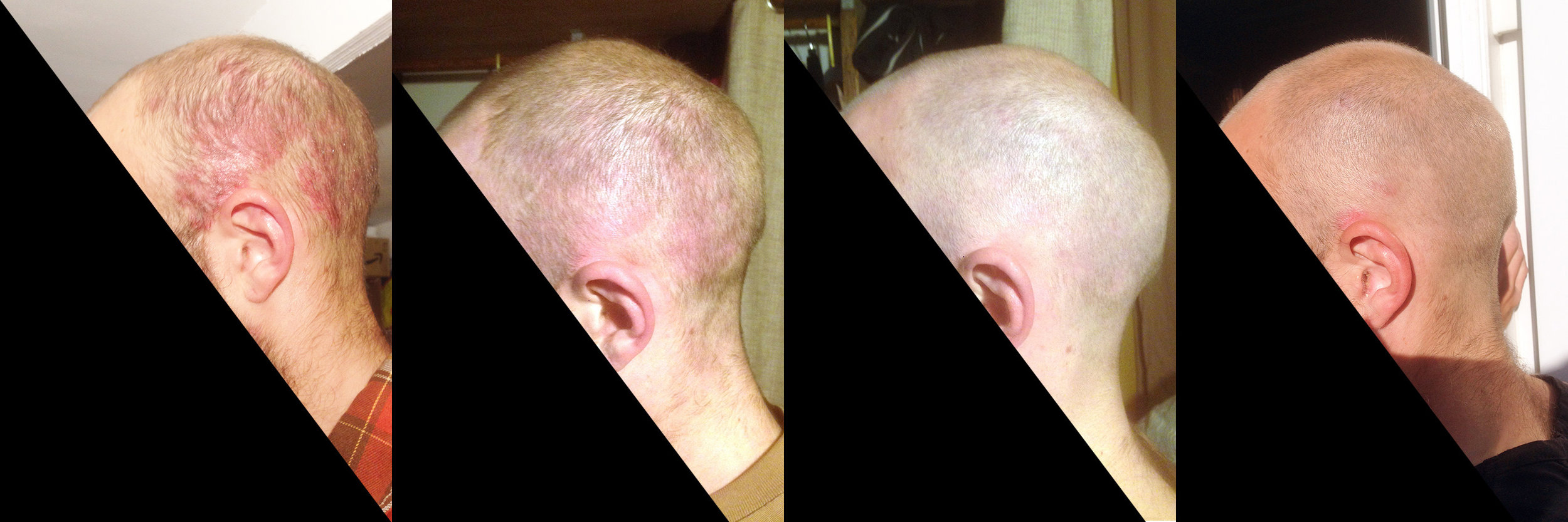 LEFT SIDE OF SCALP, HEALING PROGRESSION OVER 7 MONTHS