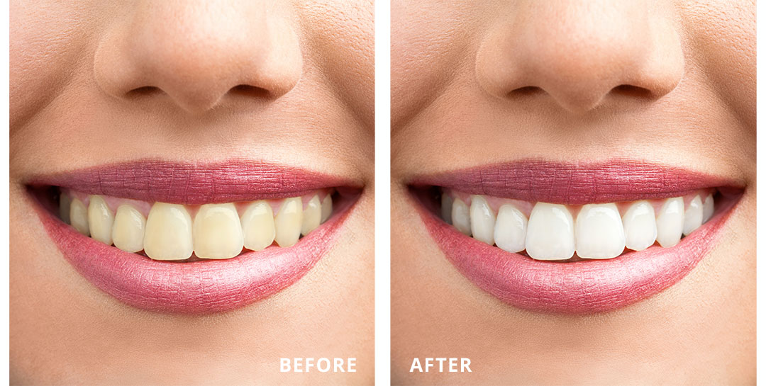 northgate-dental-sinsational-smile-teeth-whitening-before-after.jpg