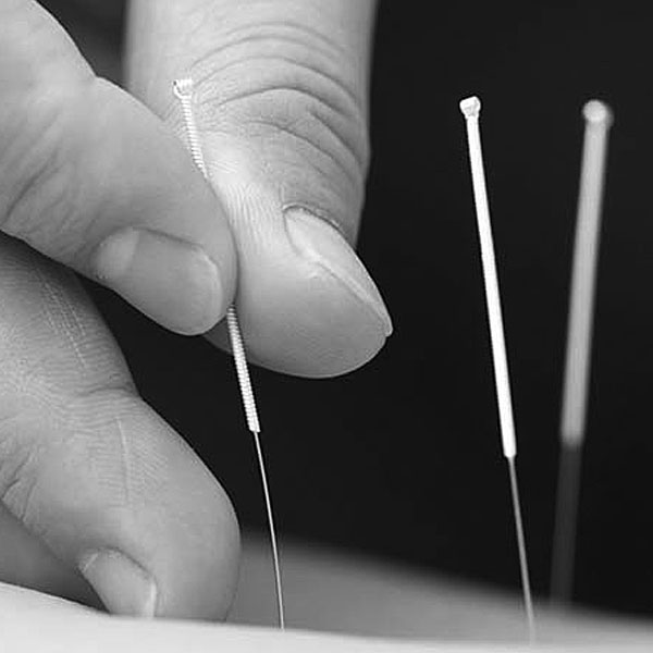 Acupuncture Treatment for chronic pain, sports related injuries and more.