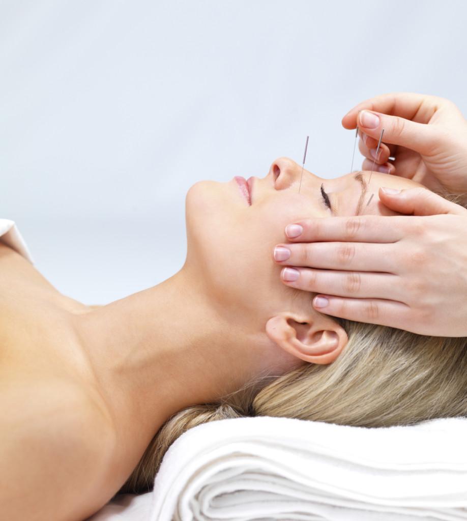 facial acupuncture.jpg