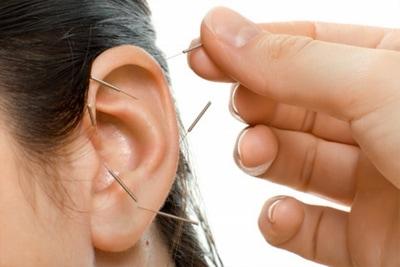 auricular acupuncture.jpg