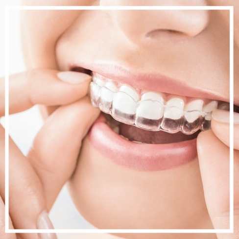 How Much Do Braces Cost in the UK? - The Dental Guide UK
