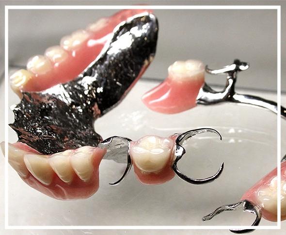 Colbalt chrome dentures