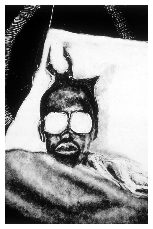 Headache, 1986