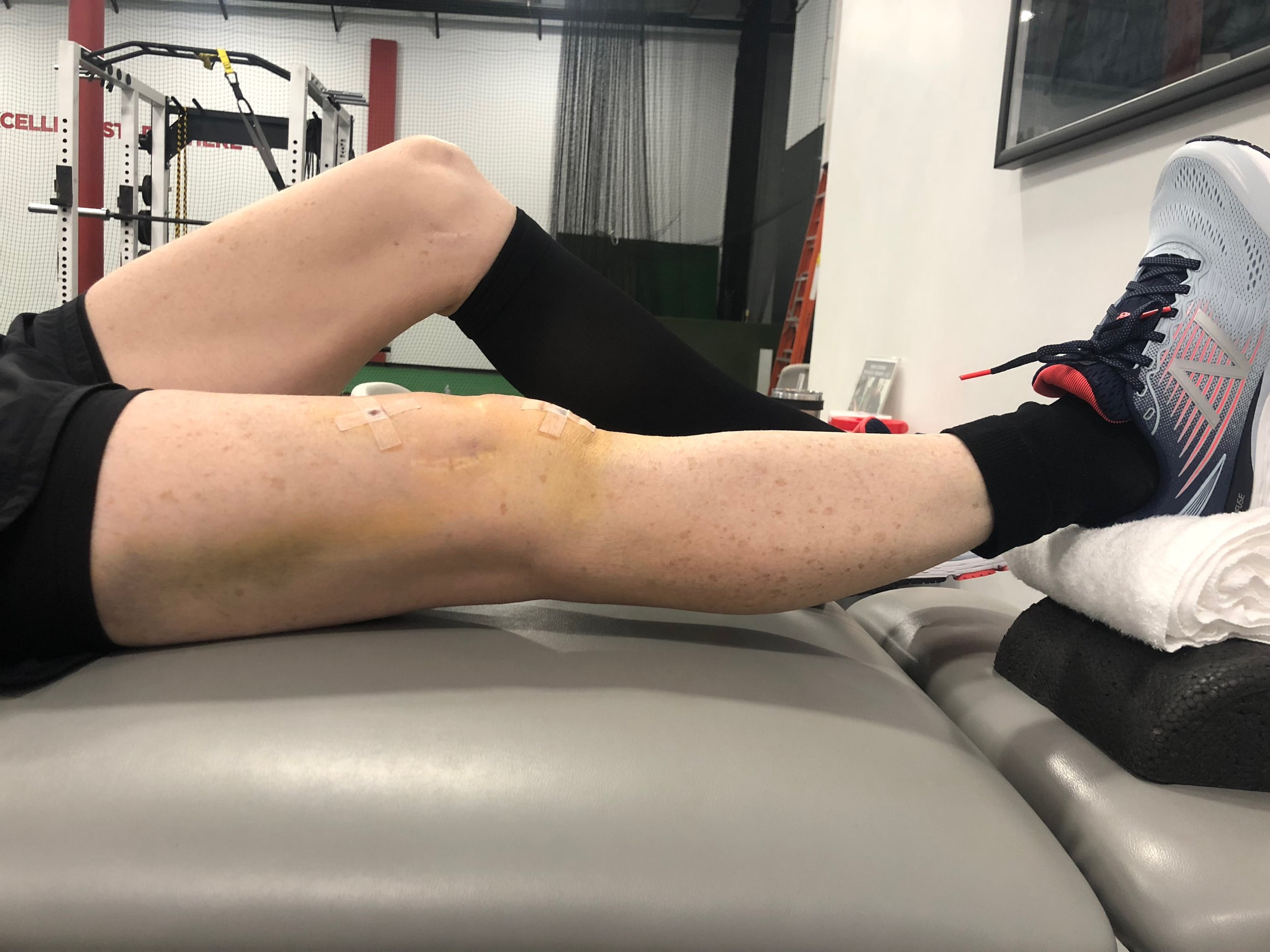 When Can I Run After ACL Surgery Part II — Move Strong Physical Therapy