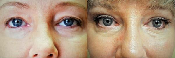 eyelid-lift-retief-skin-center-1.jpg