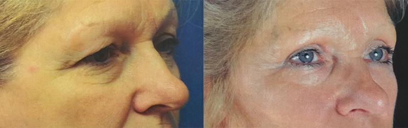 eyelid-lift-retief-skin-center-2.jpg