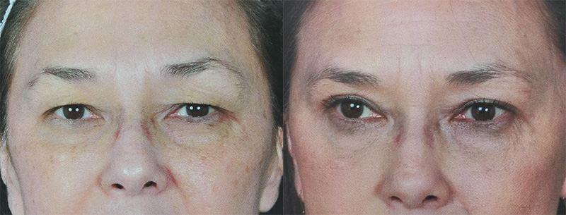 eyelid-lift-retief-skin-center-3.jpg