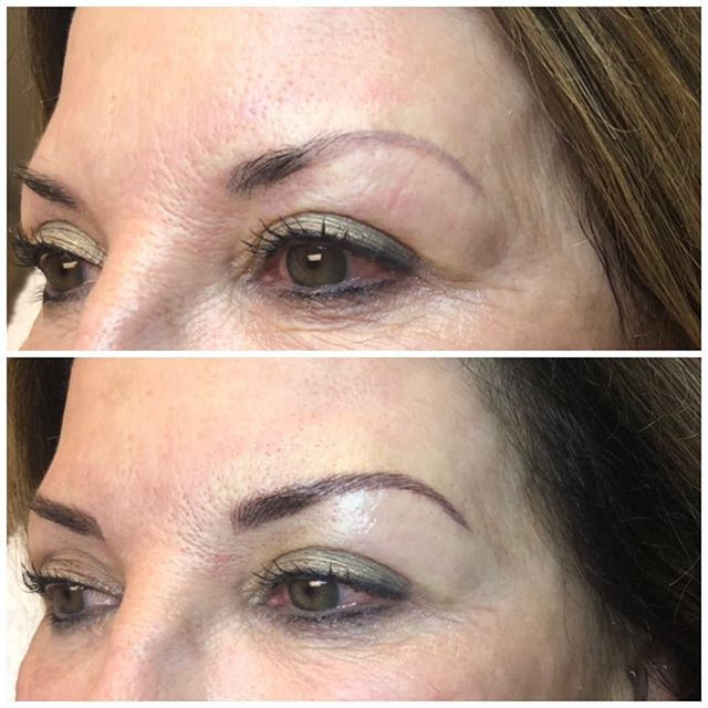 """Soft, natural Microblading on my lovely client. You can see where she has an old faded (and very thin) brow tattoo. Her natural brow also starts further away from the inner corner of the eye than it should. I fluffed these brows up a bit to give them a more natural look, covered the old tattoo and brought the inner corners of the brow in closer. Pro tip: When the inner corners of your brows don't begin at the inner corners of your eye, it gives the illusion of eyes that are too far apart. Brows are important for proper face symmetry."" -Lauren Fransen, Retief Skin Center"