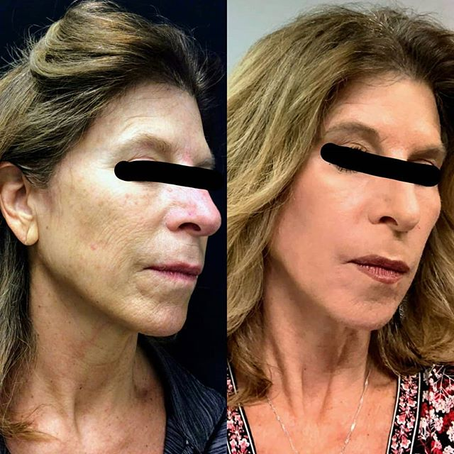 Another happy C02 laser resurfacing patient! She's a few weeks out from her procedure and already looks great! The photo on the right was taken on a cell phone. There is NO PHOTOSHOP here.  But she does have on makeup to cover the redness.  Please excuse the poor quality! Her skin will continue to tighten and the redness will continue to lighten over the next several weeks leaving her with beautiful, wrinkle-free,  youthful skin. Call our office to set up a consult today! 615-383-6092 #newyearnewskin #laserresurfacing #lumenis #cosmetics #cosmeticsurgeon #dermatology #naturalbeauty #beforeandafter #youthfulskin #beautifulskin #antiaging #aesthetics #nashville