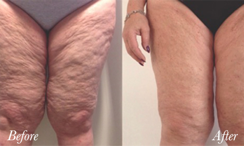 tightsculpt-before-after-1.jpg