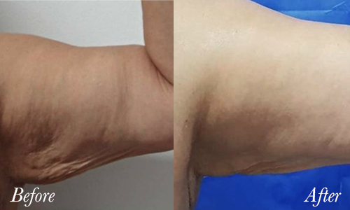tightsculpt-before-after-4.jpg