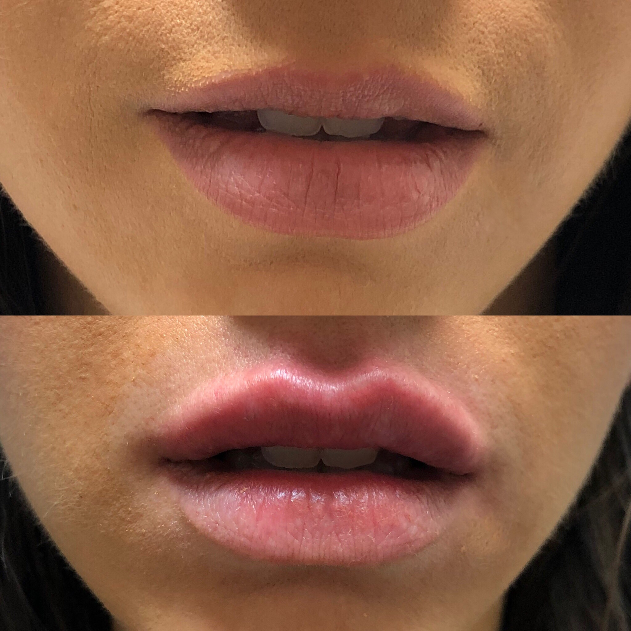 Lip Injections Before and After.JPG