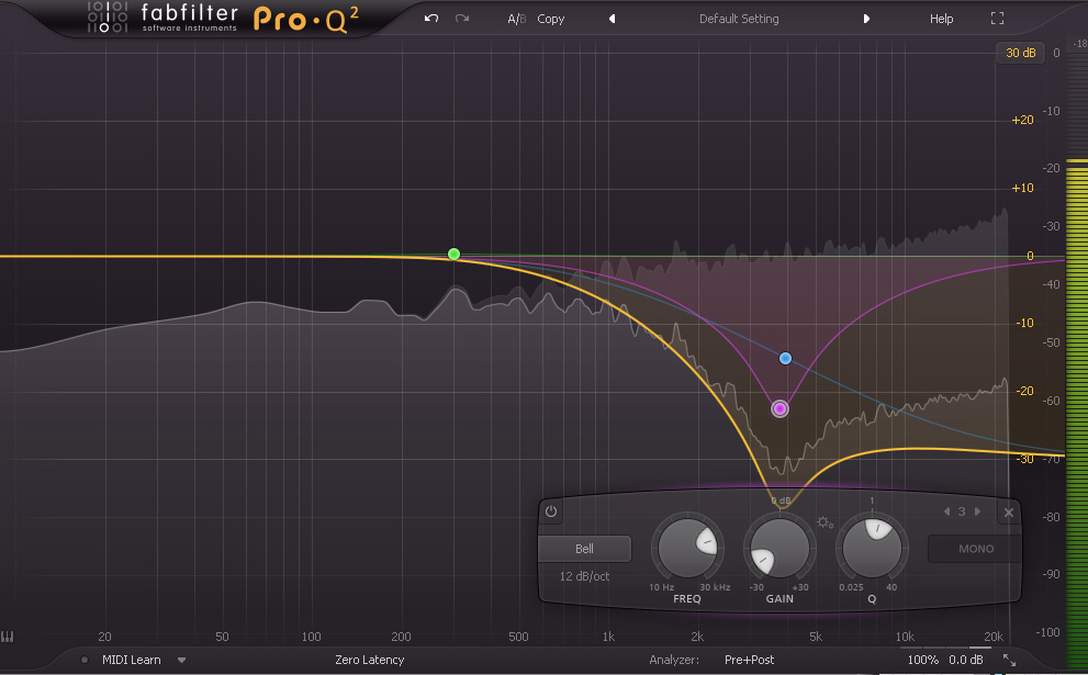 You can see the did at 4kHz as well as the high cut, corresponding to age related hearing loss.
