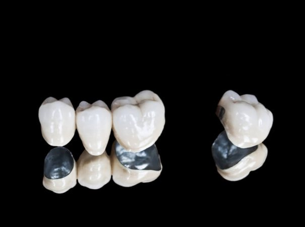 porcelain-metal-e1502951961648-605x450.jpg