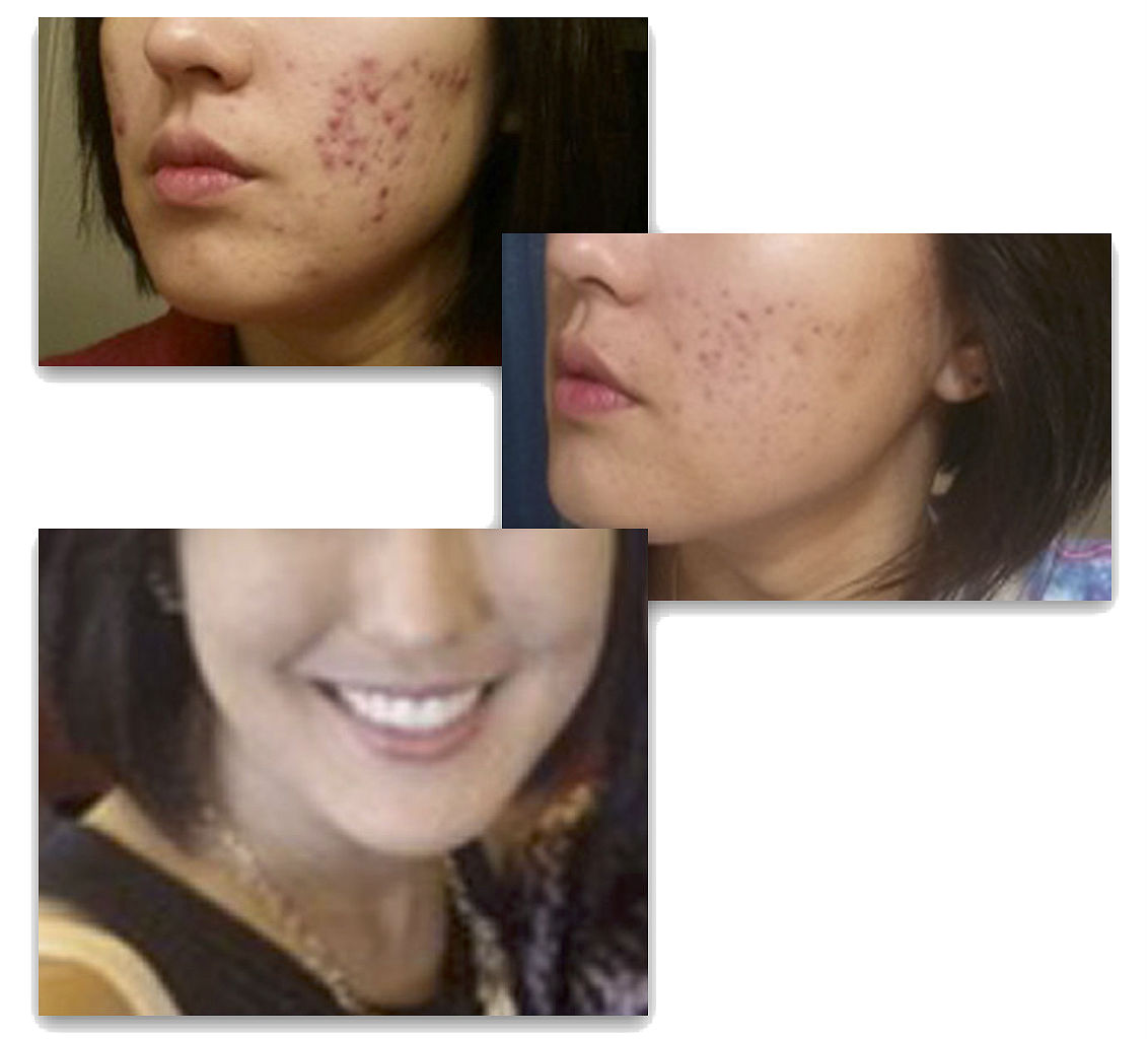 """Lifestyle treatment protocol:  """"No machines, no peels; simply a dedicated patient to the treatment plan of applying my protocol designs that exclusively included various daily combinations of Jimm's  Perfect Skin ,  Sensitive  and  Scar and Wound .""""  Georgia Williams, Lc. E. Lc.HBDI  Green Acupuncture and Med Spa"""