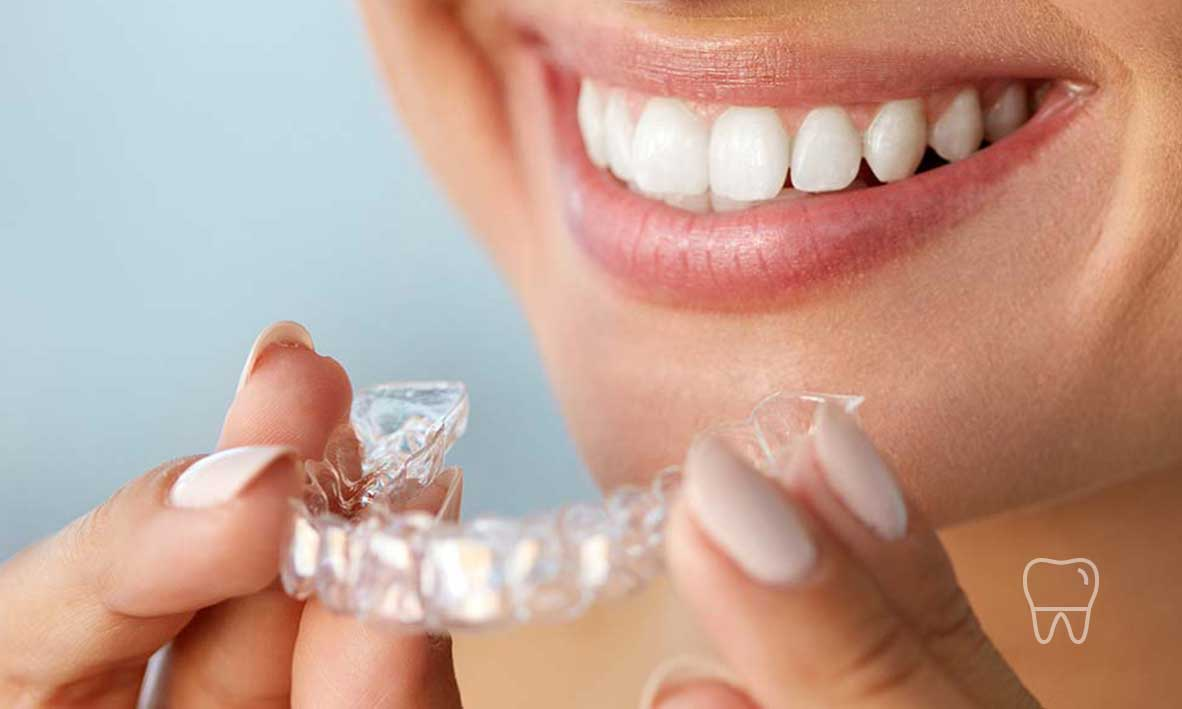 Invisalign Clear Braces - →