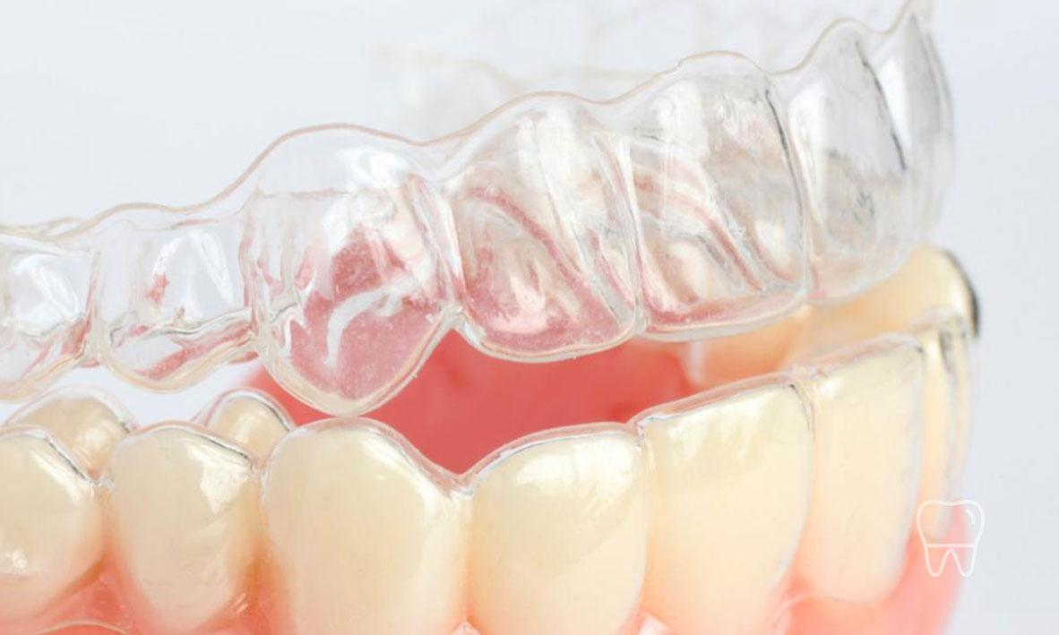 © Clear Braces Dentist Sydney Invisalign Clear Braces 01.jpg