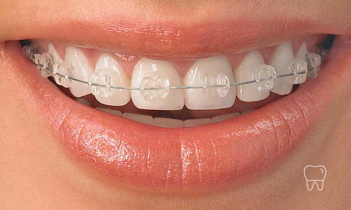 ©-Clear-Braces-Sydney-Dentist-Ceramic-Braces-01.jpg