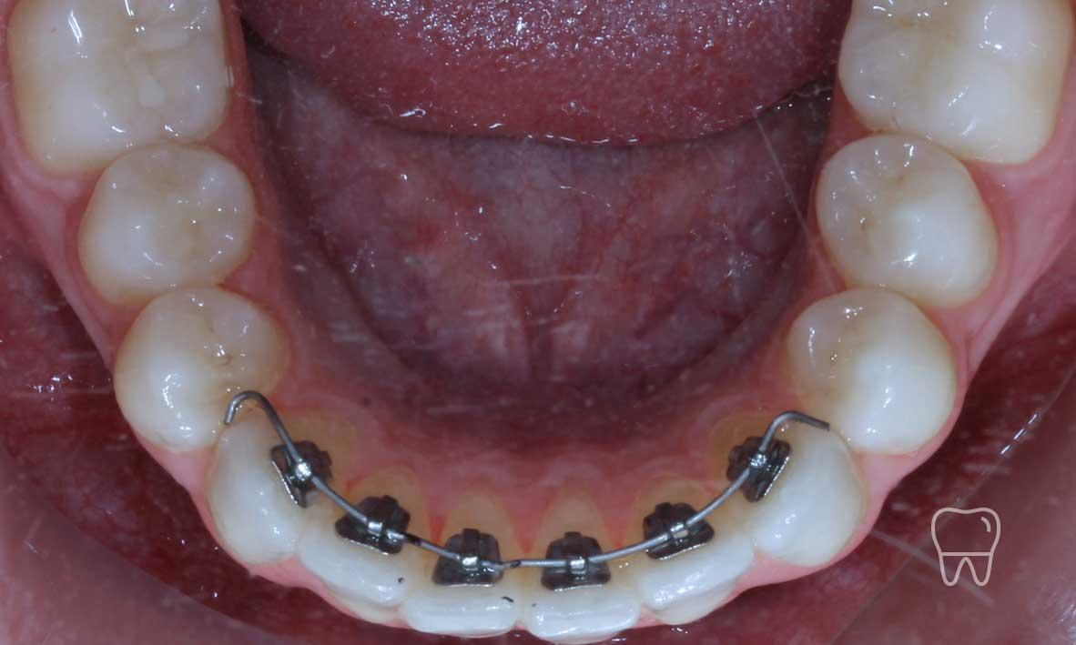 © Clear Braces Sydney Best Dentist Lingual Braces.jpg
