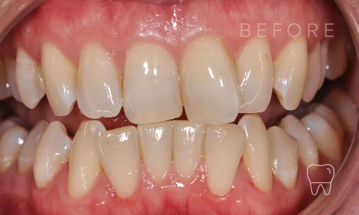 ©-Clear-Braces-Sydney-Patient-Denise-Before.jpg