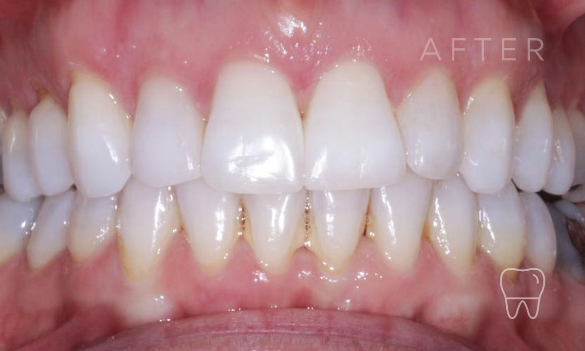 ©-Clear-Braces-Sydney-Patient-Gabriele-After.jpg