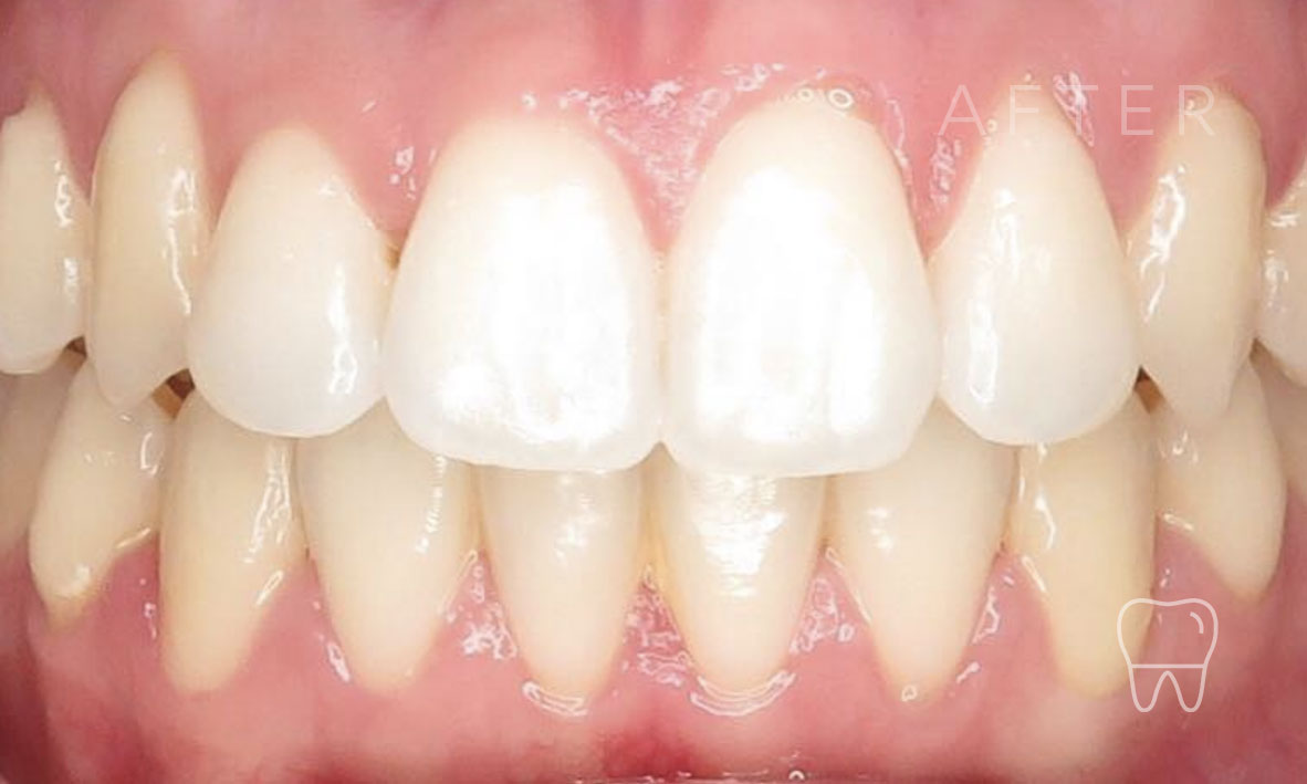 ©-Clear-Braces-Sydney-Patient-Patrice-After.jpg