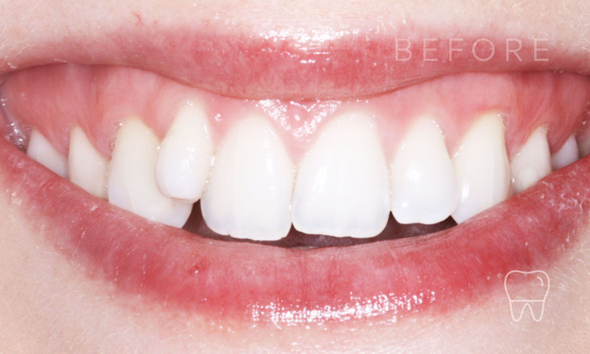 ©-Clear-Braces-Sydney-Patient-Alice-Before.jpg