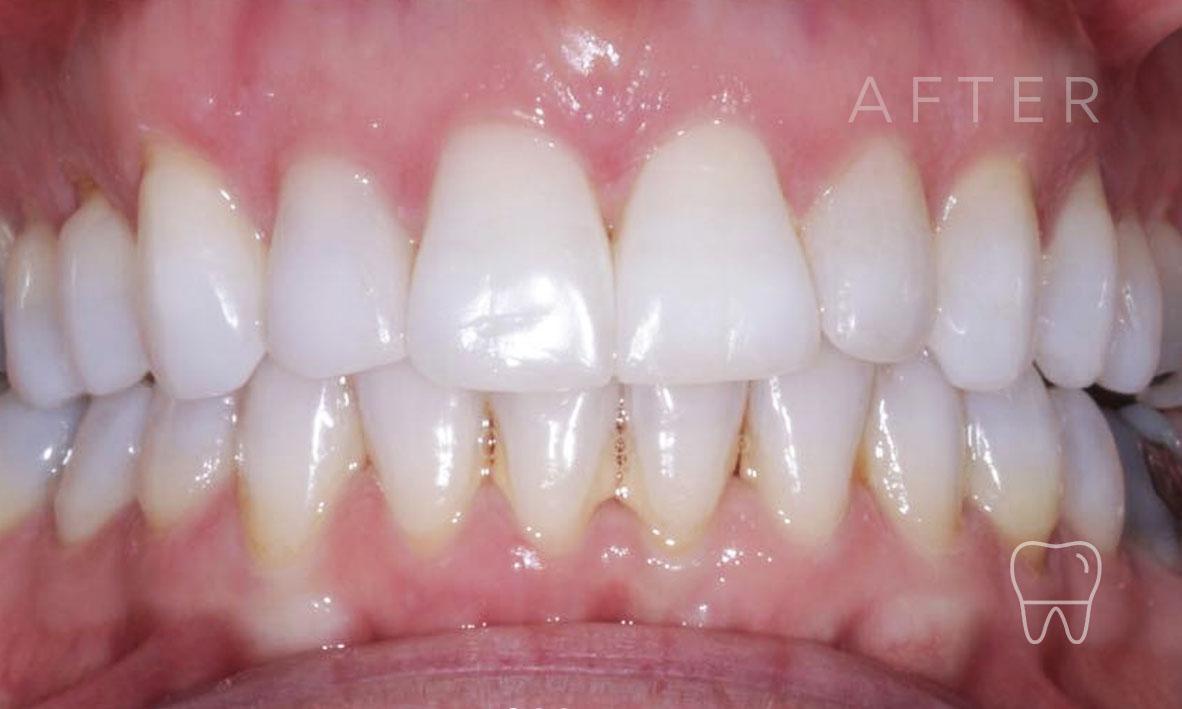 ©-Clear-Braces-Sydney-Patient-Gabriele-After.jpg