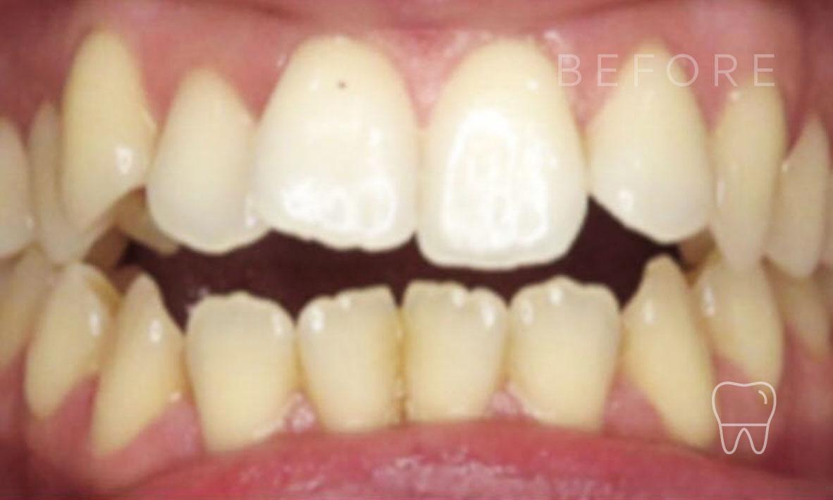 ©-Clear-Braces-Sydney-Patient-Patrice-Before.jpg