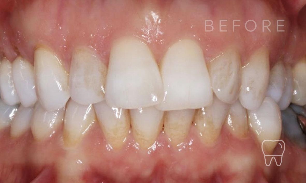 ©-Clear-Braces-Sydney-Patient-Gabriele-Before.jpg