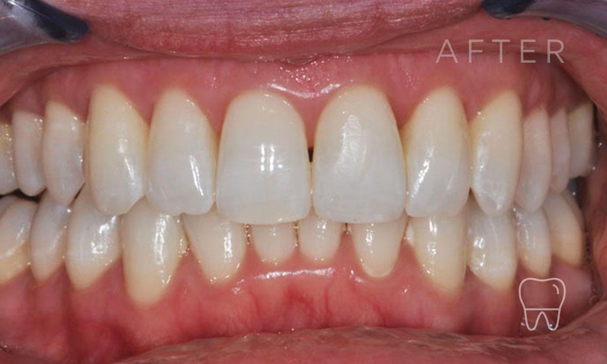 ©-Clear-Braces-Sydney-Patient-Denise-After.jpg