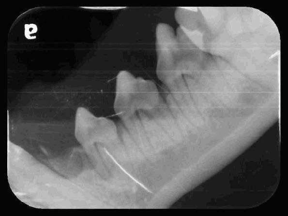 Yuki's Oral Cavity Radiographs