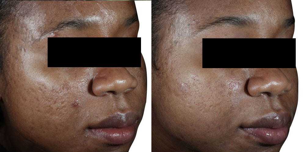 Copy of Acne scar reduction