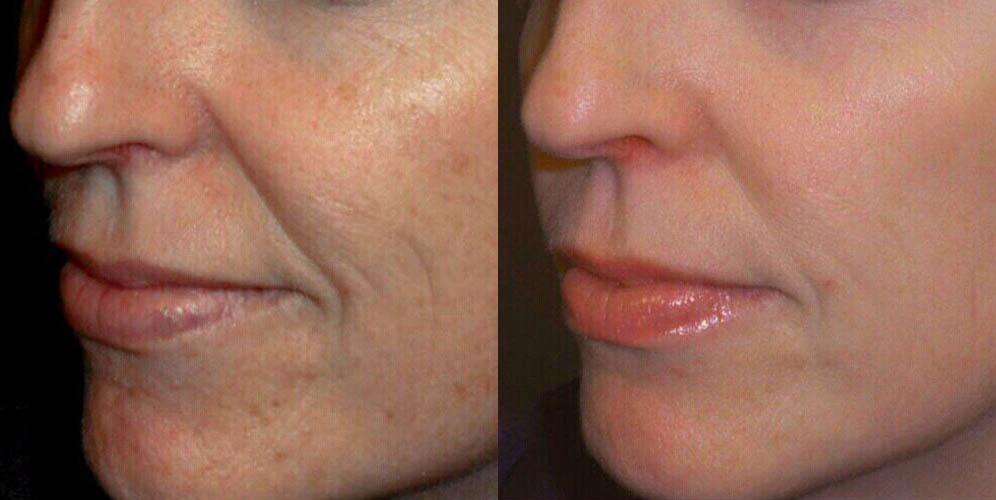 Hyperpigmentation reduction