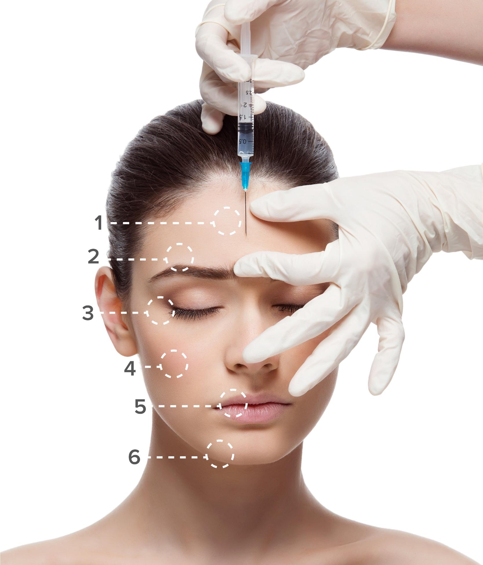 dermal fillers areas to treat anti wrinkle jpg